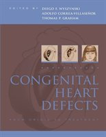 Congenital Heart Defects: From Origin To Treatment