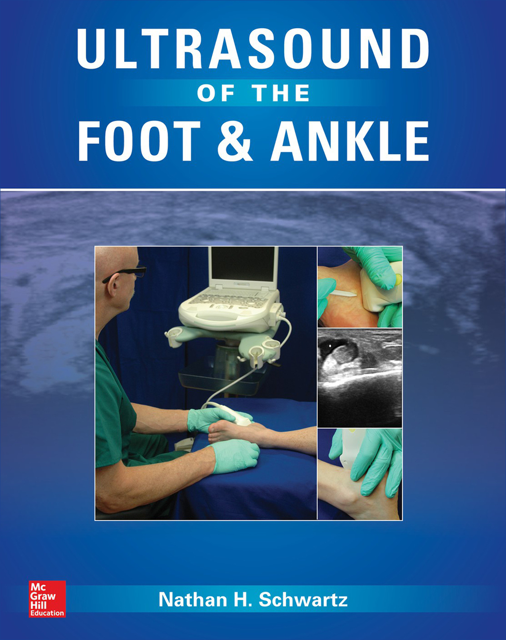 Ultrasound Of The Foot And Ankle (ebook)