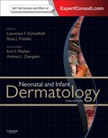 Neonatal and Infant Dermatology is a unique comprehensive and heavily illustrated reference on the dermatologic diseases of newborns and infants